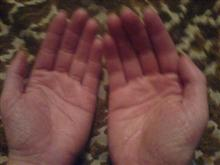 hand eczema 2 weeks after