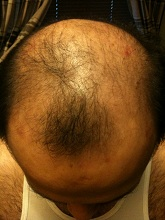 scalp psor after 2 wks